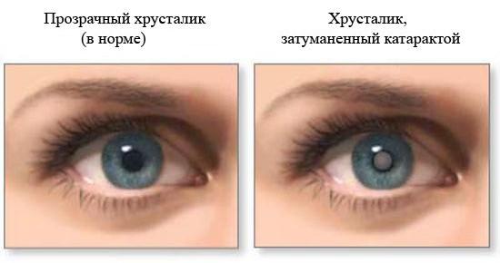 катаракта-лечение