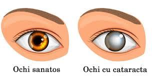 tratamentul vederii și cataractei