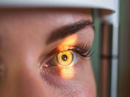 cum se salvează vederea în glaucom concluzie de la un oftalmolog pentru naștere